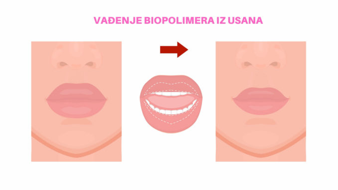 vađenje biopolimera